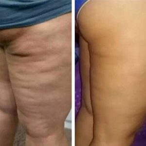 Spa Alexis Massage& Bodywork Cellulite